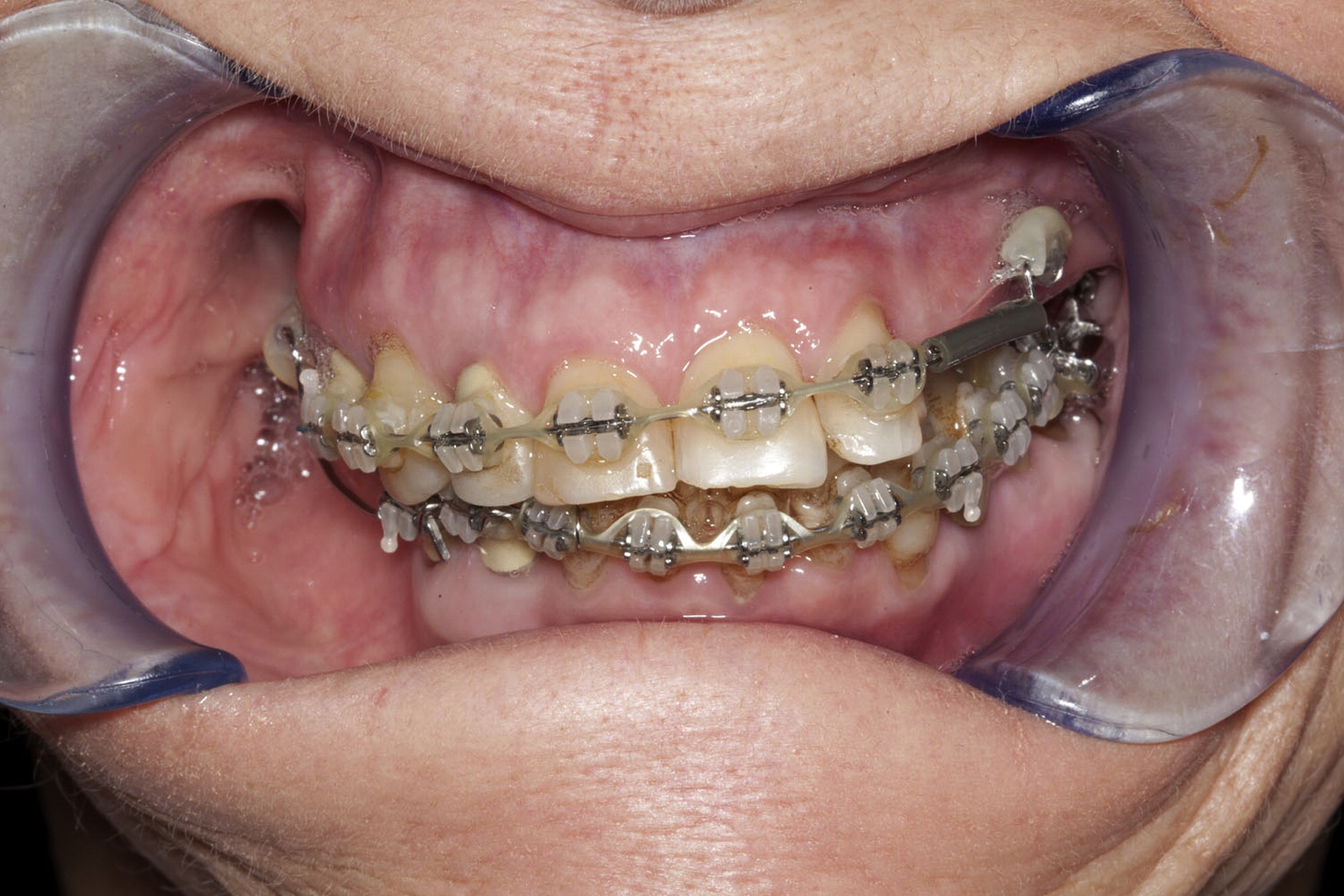 occlusion and occlusal indicating materials Occlusion, in a dental context, means simply the contact between teeth more  technically, it is  with normal dentition if this occlusal scheme is found in a  patient it typically indicates that there is advanced wear on the dentition  and  occlusion esthetic dentistry: a clinical approach to techniques and materials ( 3rd ed.