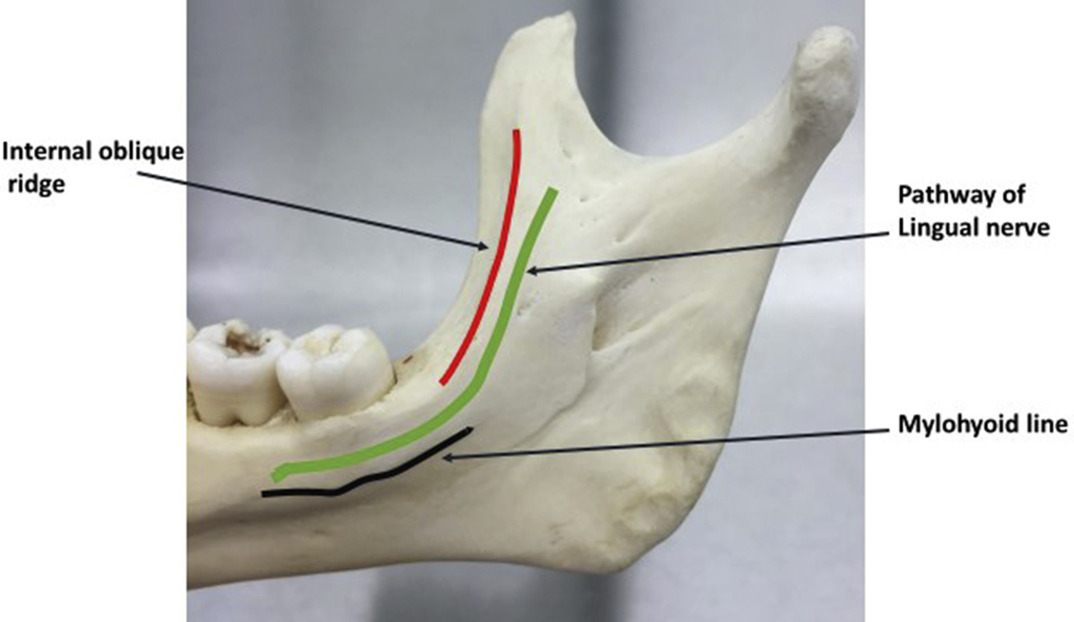 Lingual nerve measurements in cadaveric dissections ...